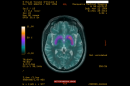 The PPMI study is using a combination of advanced imaging, biologics sampling and behavioural assessments from sites across the world to validate biomarkers of Parkinson's disease progression.