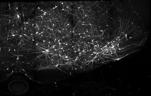 https://webresources.mq.edu.au/newsroom/wp-content/uploads/2019/05/Neurons.jpg